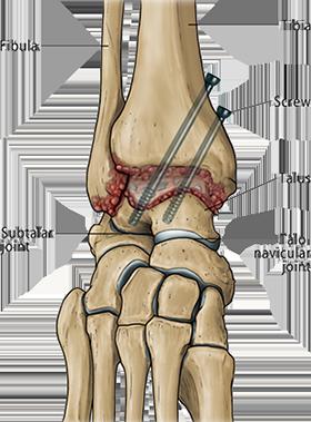 Ankle Arthrodesis Or Fusion In Broward Palm Beach Florida Foot