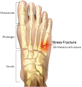 Foot Fracture Treatment Broward & Palm Beach | Florida Foot & Ankle